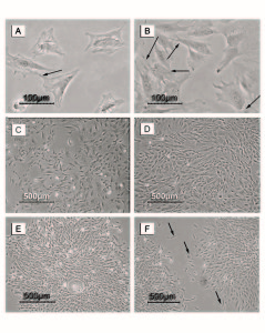 Figure 2. Photomicrographs of MSCs during passage one. Days of follow up included